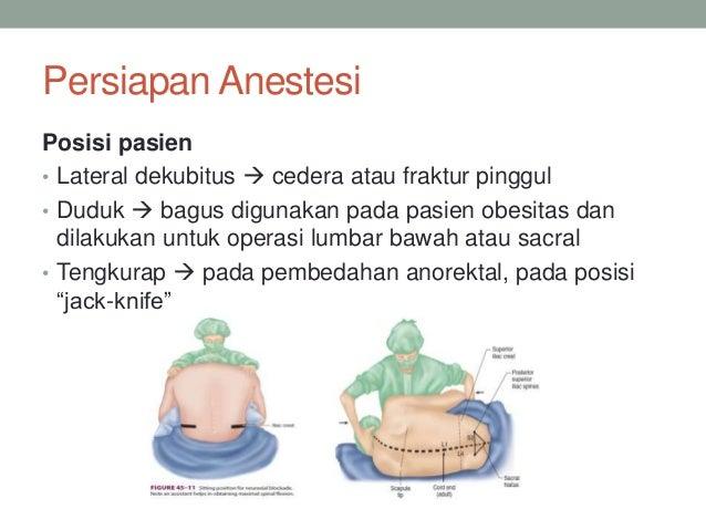 Presentasi Kasus Anestesi Spinal