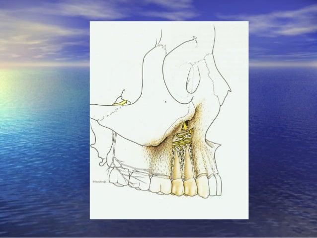 Gây tê vùng ở hàm trên:Gây tê vùng ở hàm trên: • Gây tê thần kinh hàm trên (V2 block):Gây tê thần kinh hàm trên (V2 block)...