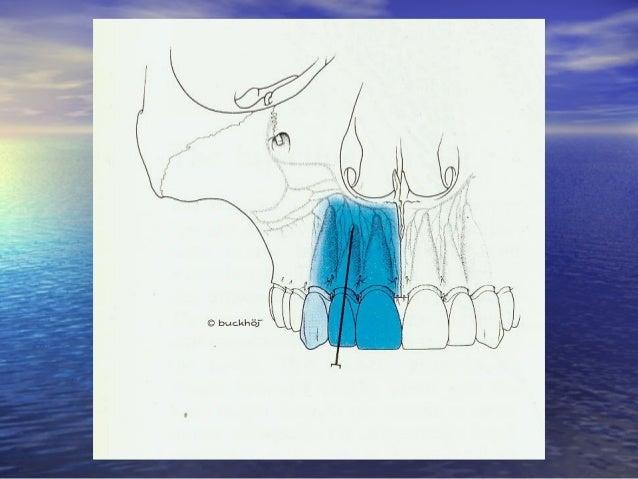 Gây tê vùng ở hàm dưới:Gây tê vùng ở hàm dưới: • Gây tê TK răng dưới:Gây tê TK răng dưới: – Miệng phải mở đối với kỹ thuật...