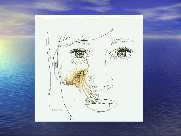 Gây tê vùng ở hàm dưới:Gây tê vùng ở hàm dưới: • Kỹ thuật Akinosi gây tê vùng dây TK hàm dướiKỹ thuật Akinosi gây tê vùng ...