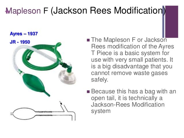Circuito Jackson Rees : Anesthesia breathing systems