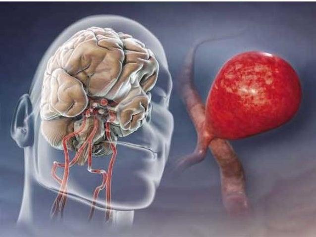 Anesthesia for cerebral aneurysm repair Slide 3