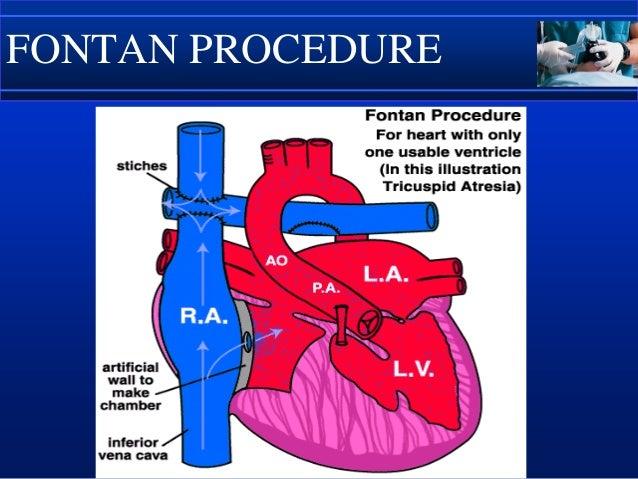 Jatene Procedure