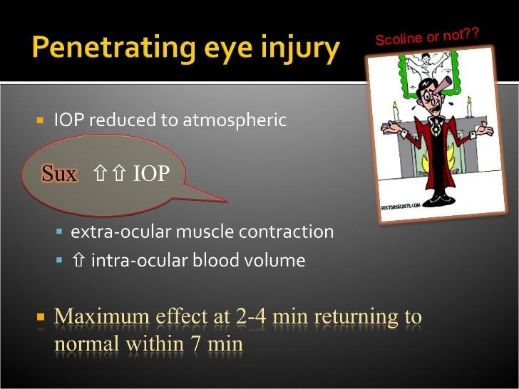    Prevention     Moderated by LA (abolish afferent arc)     Avoid hypoxia/hypercapnia (sensitizes the reflex)     Pro...
