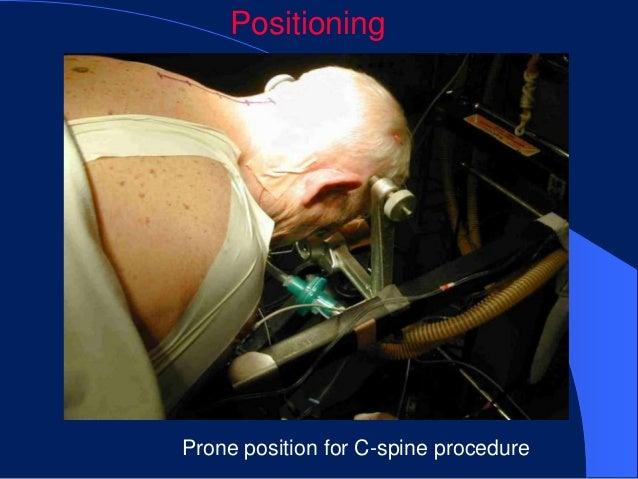 PositioningProne position for C-spine procedure