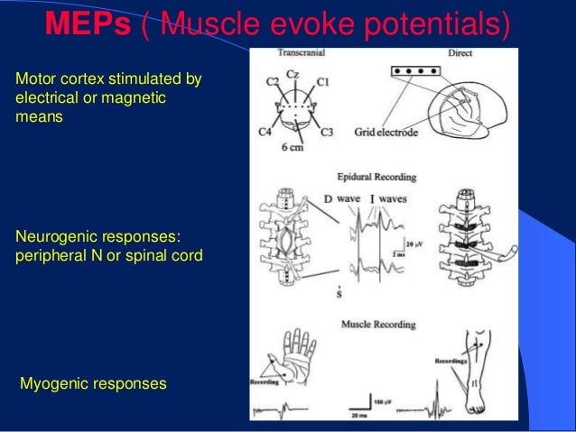 MEPs ( Muscle evoke potentials)Motor cortex stimulated byelectrical or magneticmeansNeurogenic responses:peripheral N or s...