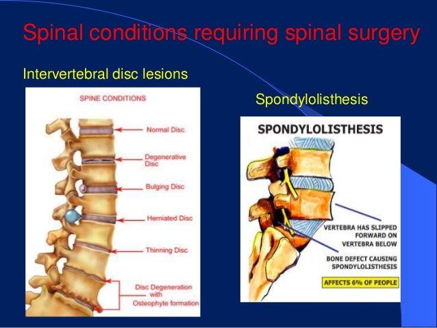 Spinal conditions requiring spinal surgeryIntervertebral disc lesions                              Spondylolisthesis