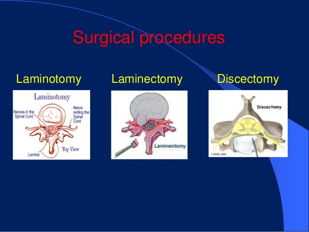 Lumbar Laminectomy, Discectomy and Fusion Surgery - Medical ...
