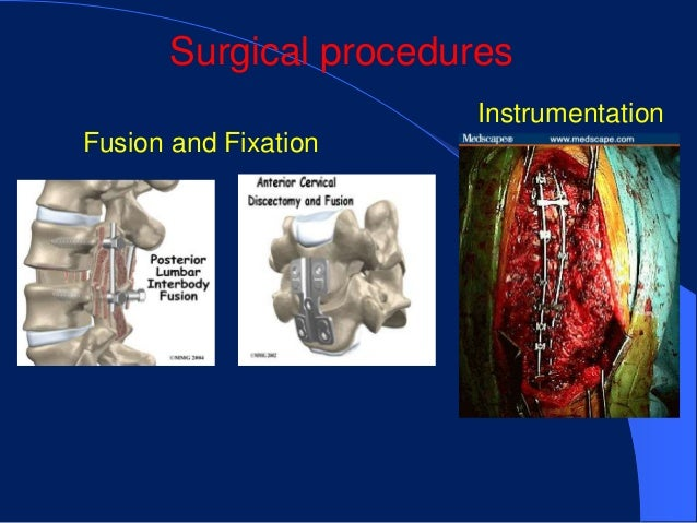 Surgical procedures                       InstrumentationFusion and Fixation
