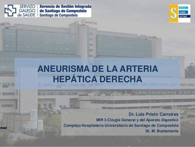 ANEURISMA DE LA ARTERIA HEPÁTICA DERECHA Dr. Luis Prieto Carreiras MIR 3 Cirugía General y del Aparato Digestivo Complejo ...