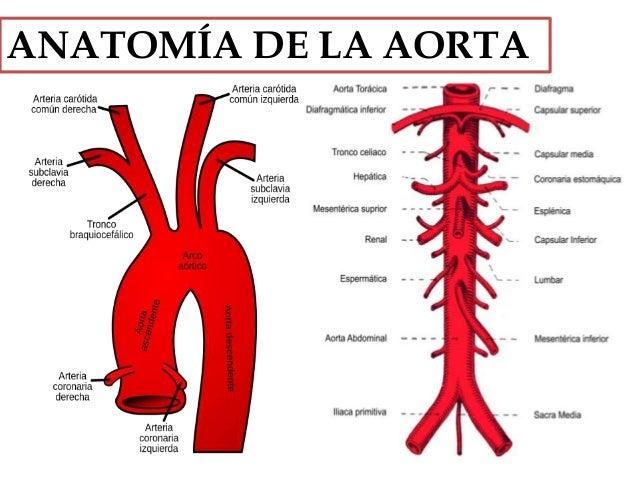 Enfermedades De La Aorta: ANEURISMA AÓRTICO y DISECCIÓN AÓRTICA