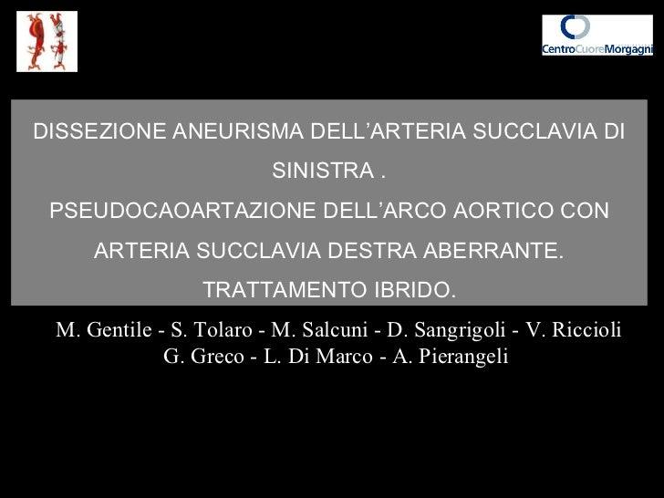 DISSEZIONE ANEURISMA DELL'ARTERIA SUCCLAVIA DI SINISTRA . PSEUDOCAOARTAZIONE DELL'ARCO AORTICO CON ARTERIA SUCCLAVIA DESTR...