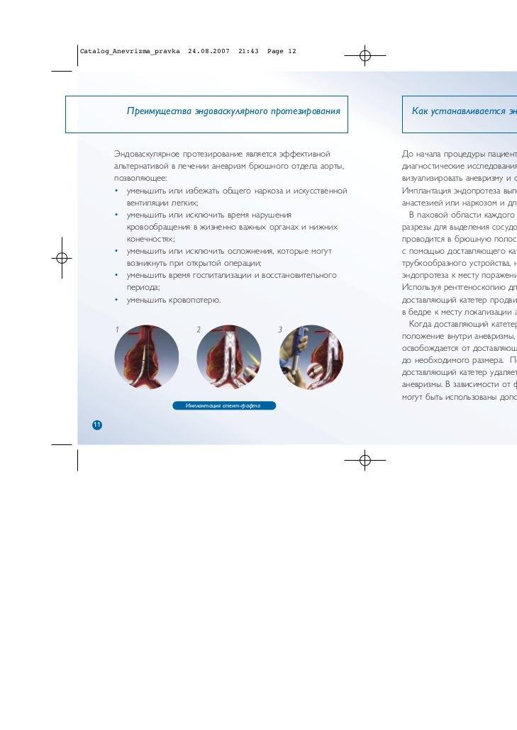 Catalog_Anevrizma_pravka   24.08.2007      21:43      Page 12            Преимущества эндоваскулярного протезирования     ...
