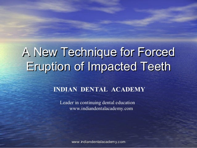 A New Technique for ForcedA New Technique for Forced Eruption of Impacted TeethEruption of Impacted Teeth www.indiandental...