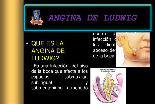 ANGINA DE LUDWIG • QUE ES LA ANGINA DE LUDWIG? Es una Infección del piso de la boca que afecta a los espacios submaxilar, ...