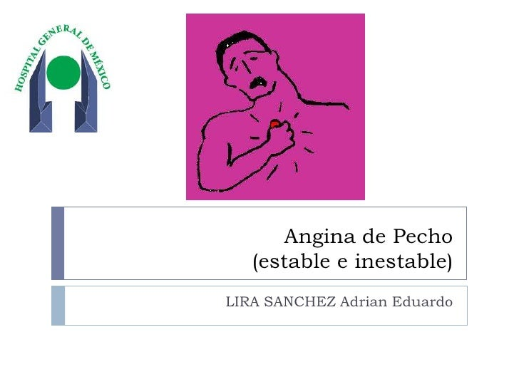 Angina de Pecho (estable e inestable) <br />LIRA SANCHEZ Adrian Eduardo<br />