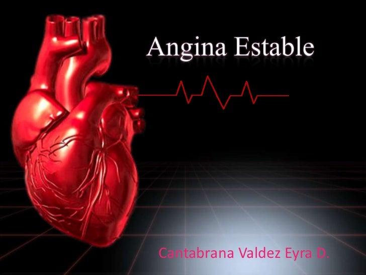 Angina Estable <br />Cantabrana Valdez Eyra D.<br />