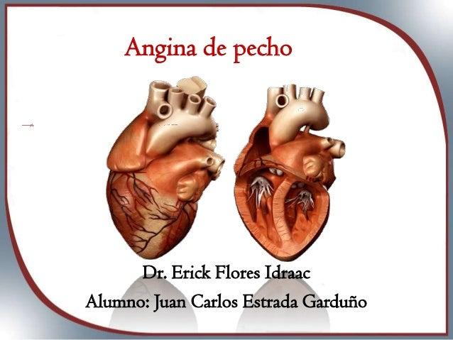 Angina de pecho  Dr. Erick Flores Idraac Alumno: Juan Carlos Estrada Garduño