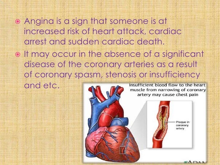 """There is a weak relationship between pain and   oxygen deprivation in the heart muscle  TRUE!!!!! """"there can be severe pai..."""