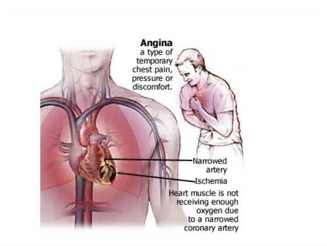 how to stop angina pain