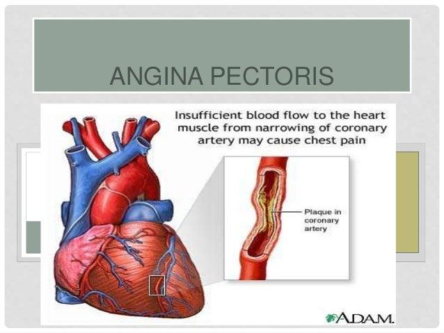 Angina pectoris-ICD-10-CM-2017