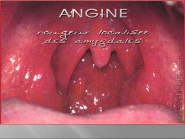 Les sinus infectés secrètent des mucosités c 'est la rhinite La gorge est infectée c 'est l 'angine L 'oreille est infecté...