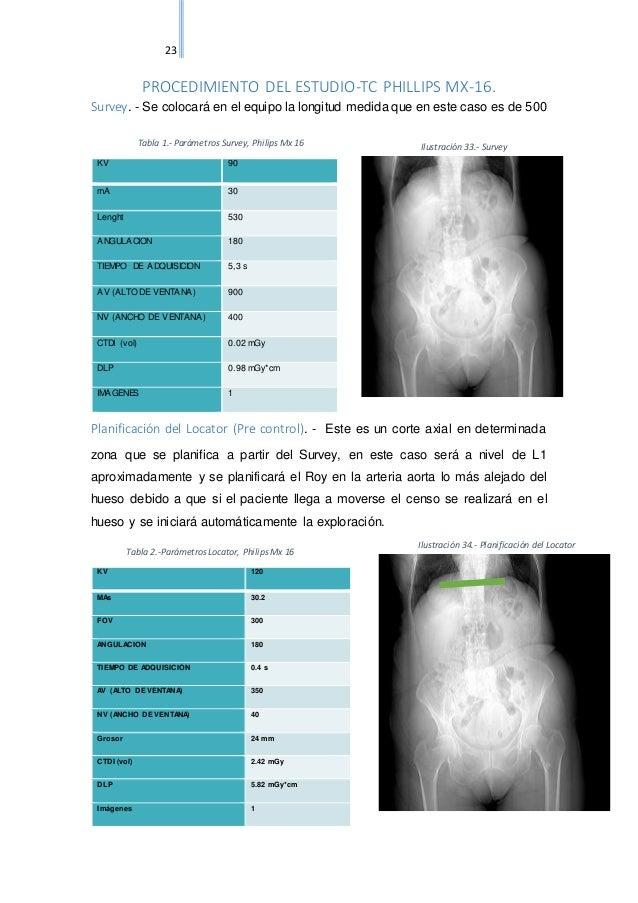 Angio tac de abdomen y pelvis