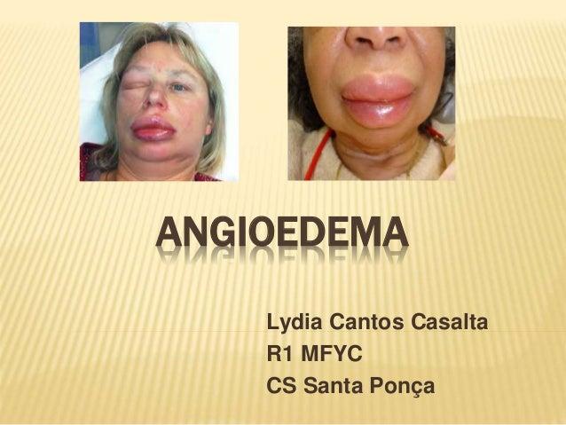 ANGIOEDEMA Lydia Cantos Casalta R1 MFYC CS Santa Ponça