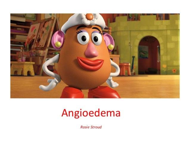 Angioedema Rosie Stroud