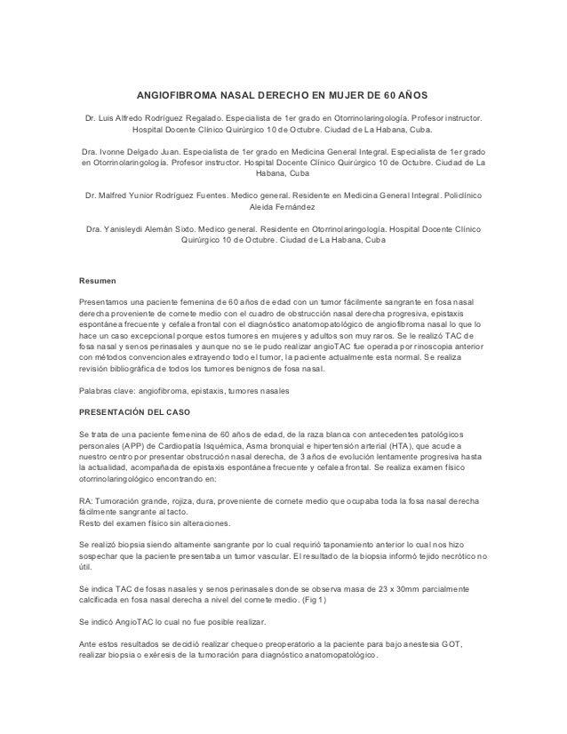ANGIOFIBROMA NASAL DERECHO EN MUJER DE 60 AÑOS Dr. Luis Alfredo Rodríguez Regalado. Especialista de 1er grado en Otorrinol...