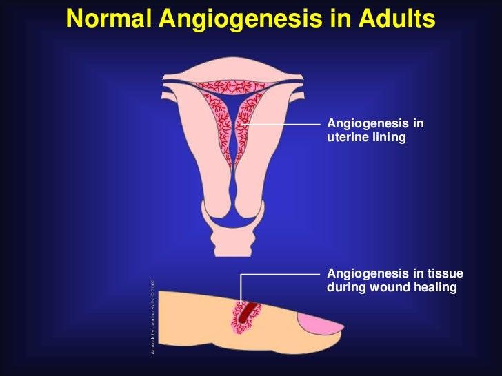 Normal Angiogenesis in Adults                    Angiogenesis in                    uterine lining                    Angi...