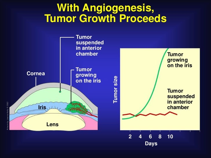 With Angiogenesis,      Tumor Growth Proceeds                 Tumor                 suspended                 in anterior ...