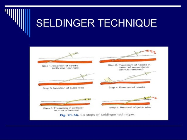 Seldinger technique is a method of investment key investment advisors llc