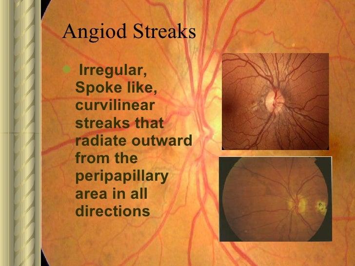 Lacquer cracks vs angioid streaks