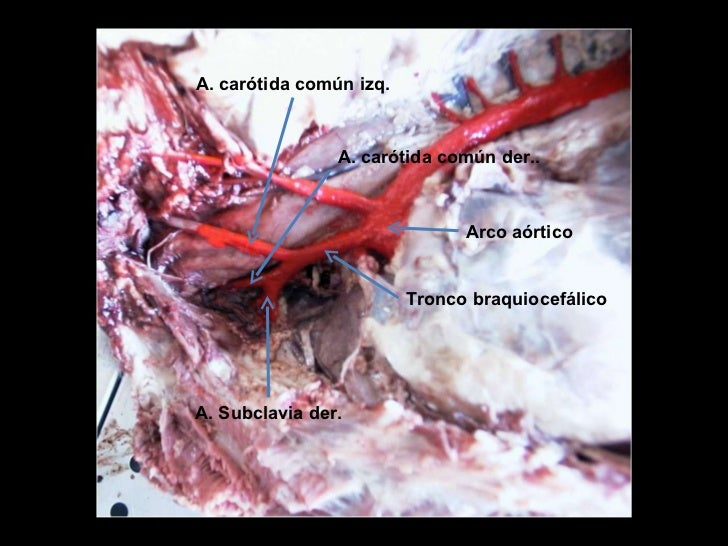 Angiología e inervación de la cavidad torácica