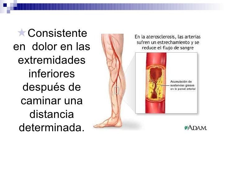 <ul><li>Consistente en  dolor en las extremidades inferiores después de caminar una distancia determinada. </li></ul>