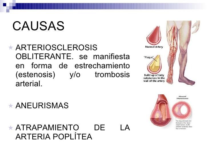 CAUSAS <ul><li>ARTERIOSCLEROSIS OBLITERANTE. se manifiesta en forma de estrechamiento (estenosis) y/o trombosis arterial. ...