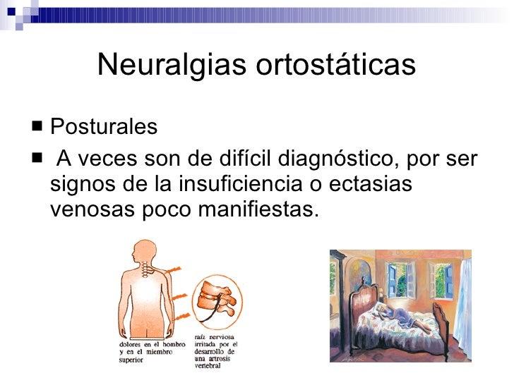 Neuralgias ortostáticas <ul><li>Posturales </li></ul><ul><li>A veces son de difícil diagnóstico, por ser signos de la insu...