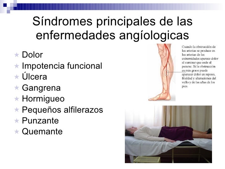 Síndromes principales de las enfermedades angíologicas <ul><li>Dolor </li></ul><ul><li>Impotencia funcional </li></ul><ul>...