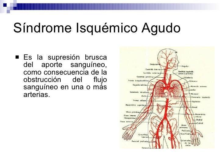 Síndrome Isquémico Agudo <ul><li>Es la supresión brusca del aporte sanguíneo, como consecuencia de la obstrucción del fluj...