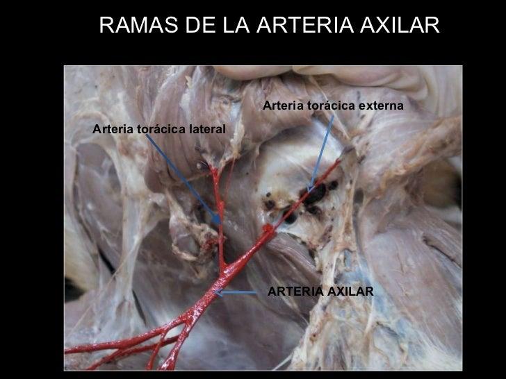 Angiologia de miembro torácico