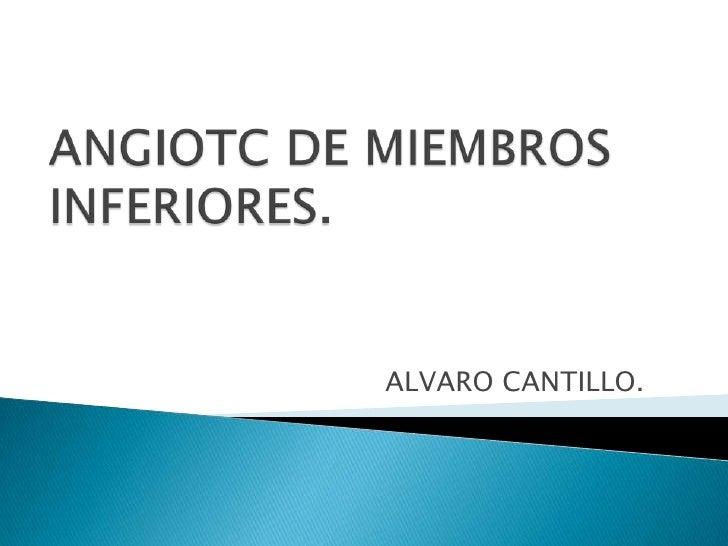 ALVARO CANTILLO.