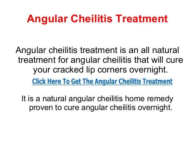Angular Cheilitis TreatmentAngular cheilitis treatment is an all naturaltreatment for angular cheilitis that will cure    ...