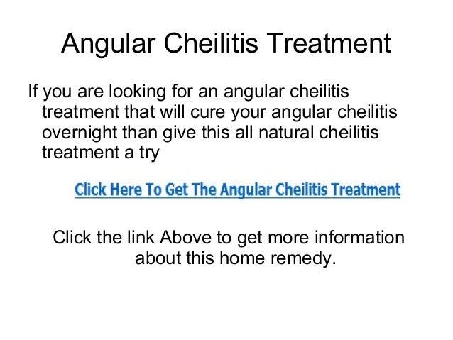 Angular Cheilitis Treatment That Works