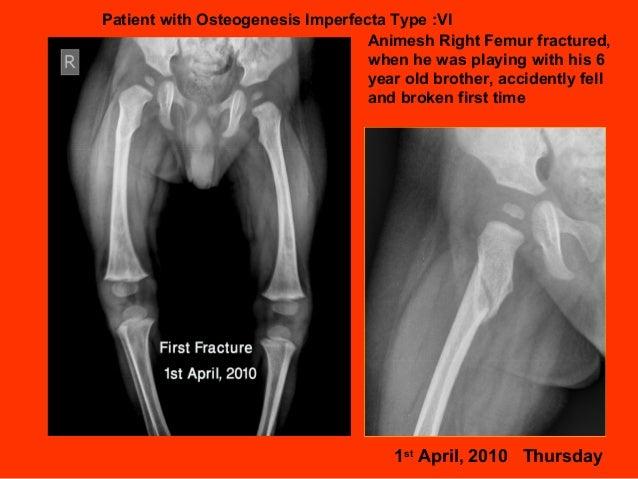 Osteogenesis Imperfecta (OI) type: IV (Animesh Lamichhane ...