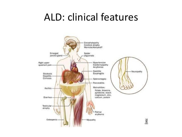 the clinical description of adrenoleukodystrophy ald disease Ald is an x-linked disease caused by mutations in abcd1, which  14 of 17  patients showed no or minimal clinical symptoms, and 12 of 17.