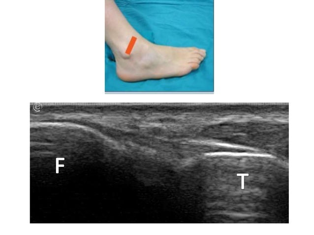Ultrasound examination of the Ankle