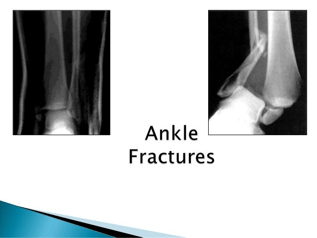  Ankle is a three bone joint composed of the tibia , fibula an talus  Talus articulates with the tibial plafond superior...