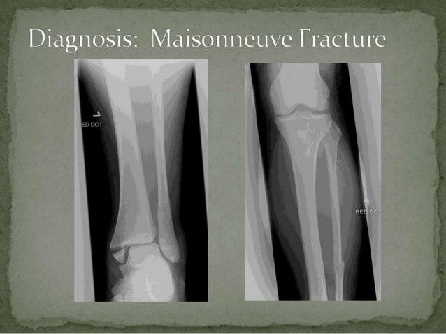 Maisonneuve Fracture