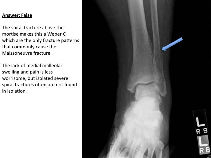 Ankle fractures question/image bank